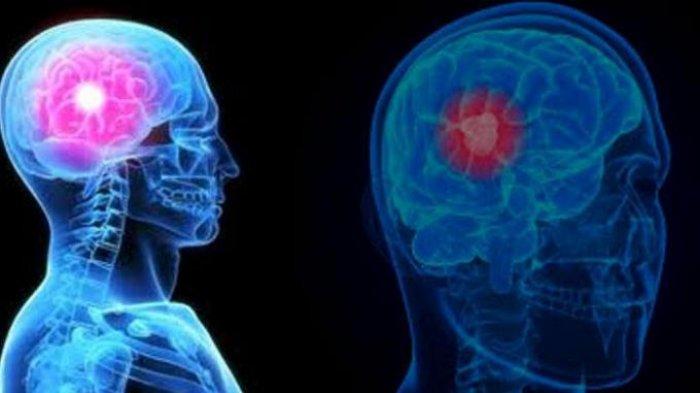 Menjaga pikiran tetap sehat