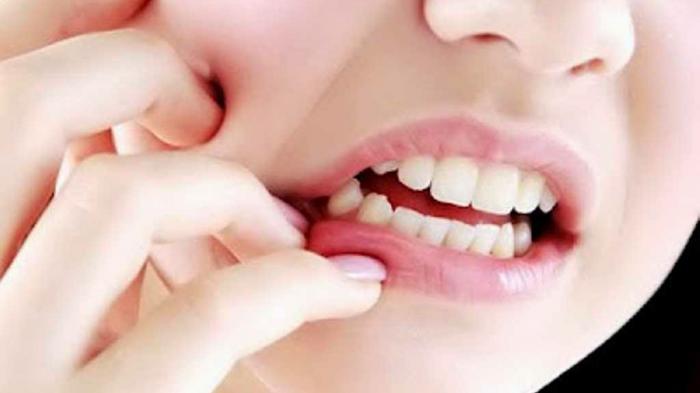 tips mengatasi nafas buruk