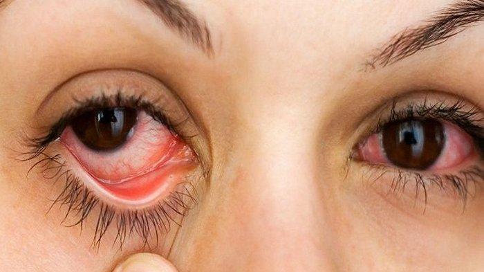masalah kesehatan mata