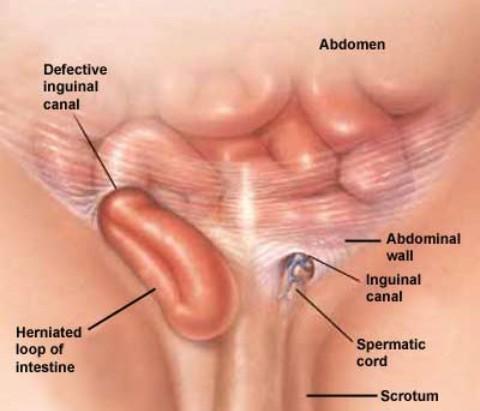hernia ingunalis
